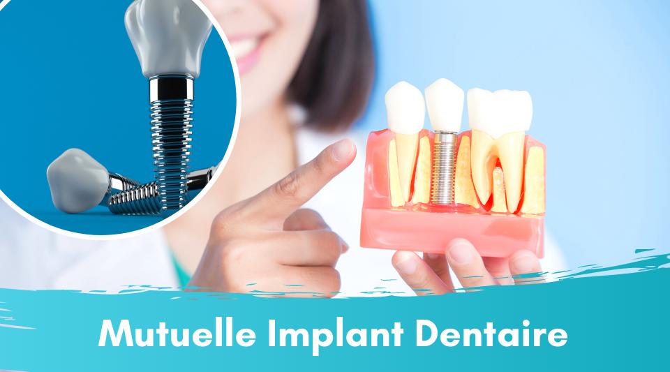 implant dentaire remboursé par la mutuelle mais pas par la sécu